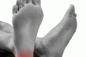Болезни пяток и их лечение