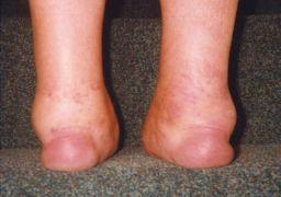 Симптомы псориатического артрита
