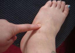 Почему возникает боль в верхней части стопы