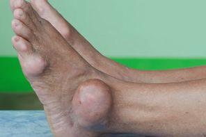 Домашнее излечение от подагрического артрита