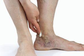 Почему болит вена на ноге