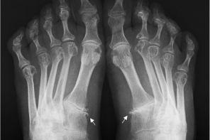 Рентгенологические признаки ревматоидного артрита