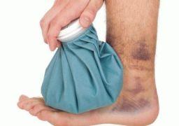 Как лечить ушиб ноги с отёком