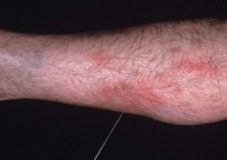 Покраснения на ногах при варикозе