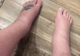 Отёки ног после кесарева сечения
