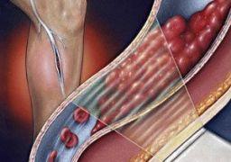 Профилактика тромбоза