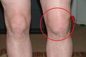 Методы лечения подагры коленного сустава