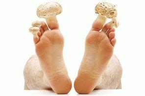 Симптомы грибка ногтей на ногах