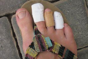 Почему болит палец на ноге около ногтя