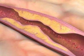 Атеросклероз сосудов нижних конечностей