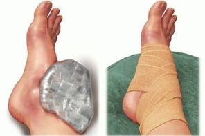 Перелом плюсневой кости стопы