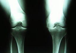 Остеоартроз коленного сустава 3 степени