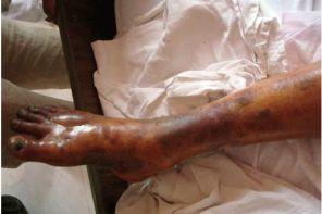 Как лечить гангрену ноги