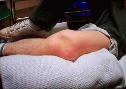 Перелом коленной чашечки