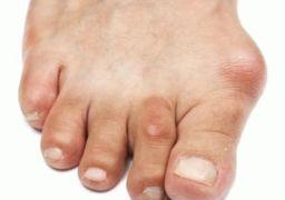 Симптомы тофусов при подагре ног