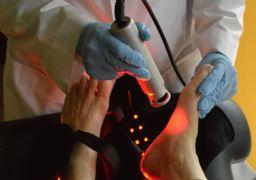 Удаление мозолей лазером