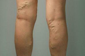Признаки варикоза вен на ногах