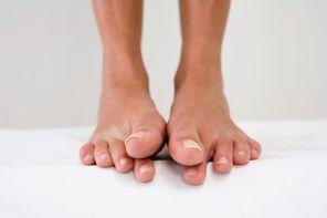 Онемение кончика пальца на ноге