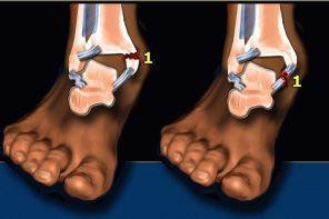 Перелом ноги в лодыжке