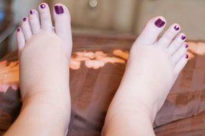 Почему отекают ноги в третий триместр