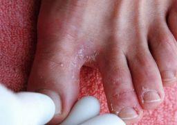 Опрелость между пальцами ног