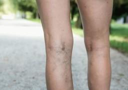 Как снять отёк ног при варикозе