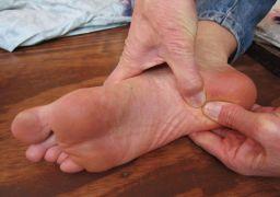 Как лечить шипы на пятках