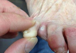 Мозоли между пальцами ног