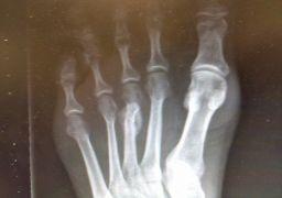 Почему болит плюсневая кость стопы
