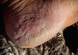 Лечение трещин на пятках перекисью водорода
