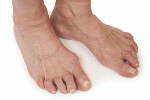 Клинические проявления ревматоидного артрита