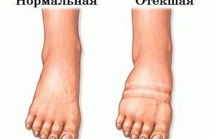 Причины отёчности ног в вечернее время