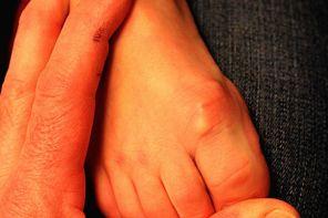 Шишки на ногах у ребенка