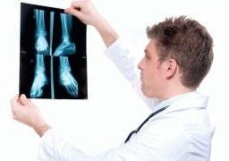 Какой врач лечит плоскостопие