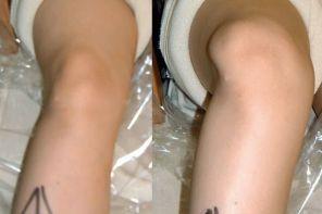 Симптомы и лечение вывиха коленного сустава