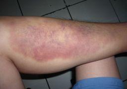 Опухает левая нога внизу: причины и как лечить