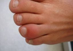 Почему опух палец на ноге