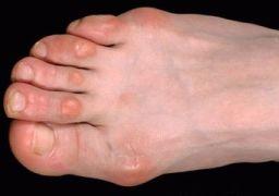 Шишки на пальцах ног