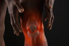 Боли в коленях