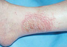 Как лечить мокнущую экзему на ногах