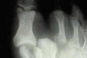 Вывих большого пальца ноги