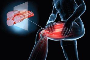 Судороги мышц