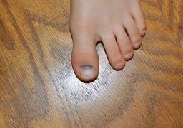 Почему ноготь на ноге почернел, но не болит?