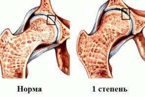 Артроз тазобедренного сустава 3 степени