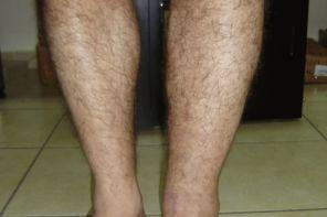 Причины отёков голени