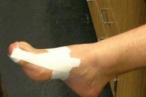 Ушиб ногтя большого пальца ноги