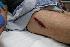 Открытая рана на ноге