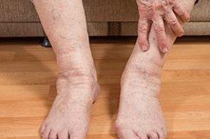 Блуждающий артрит