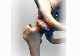 Реактивный артрит тазобедренного сустава у детей
