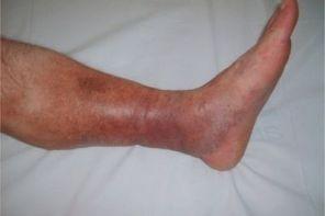 Признаки тромбоза